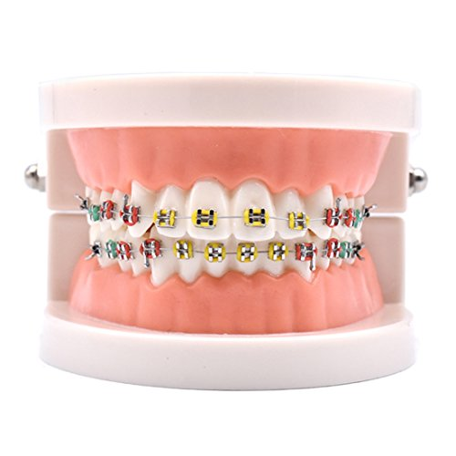 Oral Dentistry Dental Orthodontic Model Teeth Treatment Model with Metal Bracket Arch Wire Buccal Tube Dental Teeth Model with Braces